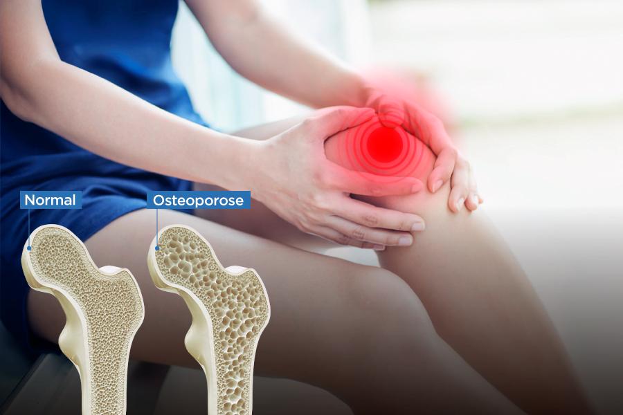 Osteoporose: ossos mais frágeis e sujeitos a fraturas